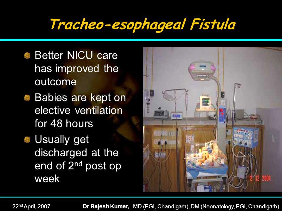 Tracheo-esophageal Fistula