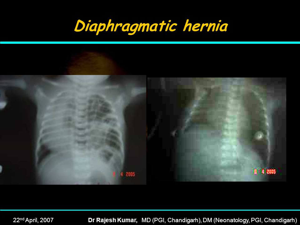 Diaphragmatic hernia 22nd April, 2007