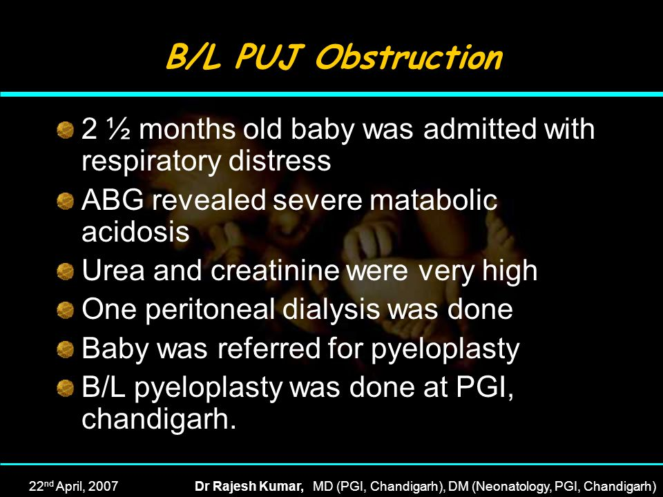 B/L PUJ Obstruction 2 ½ months old baby was admitted with respiratory distress. ABG revealed severe matabolic acidosis.