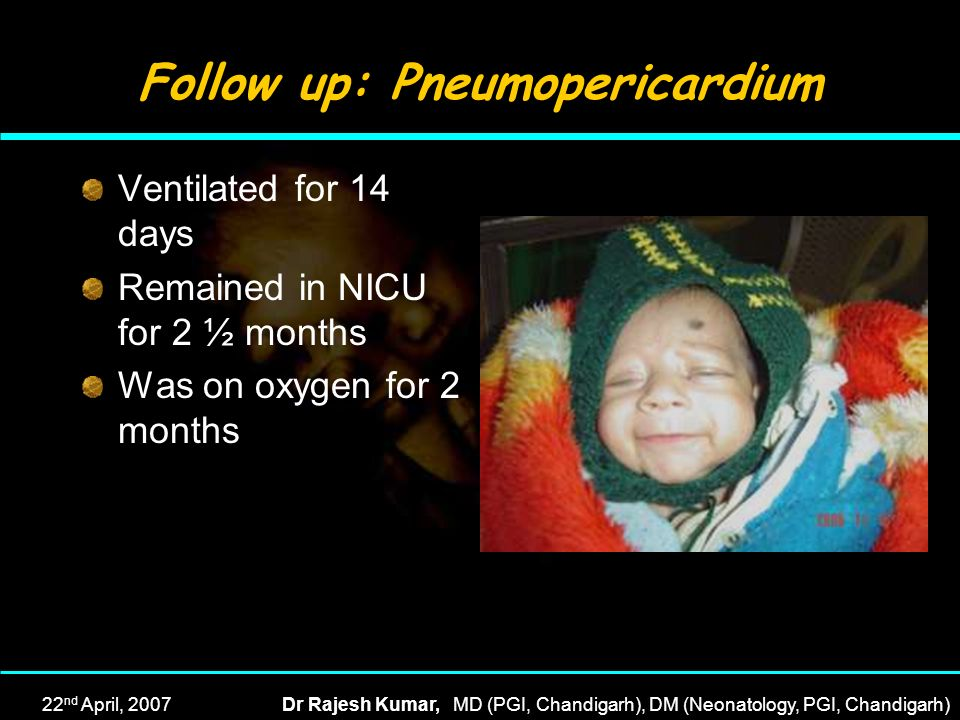Follow up: Pneumopericardium