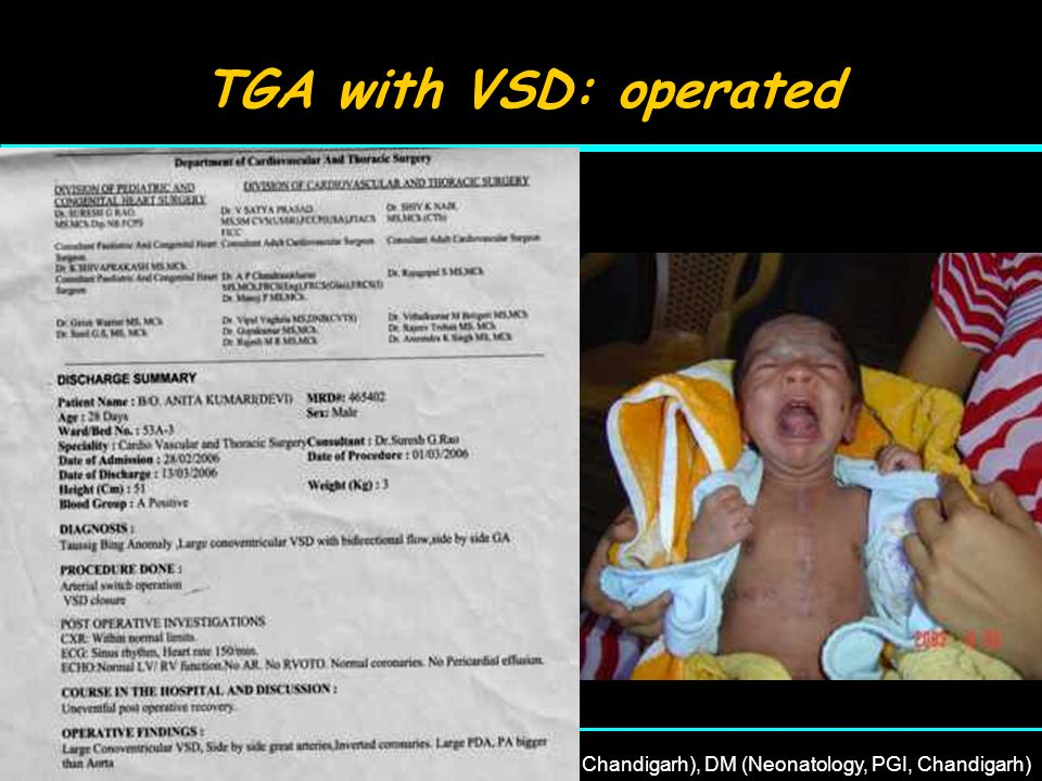 TGA with VSD: operated 22nd April, 2007