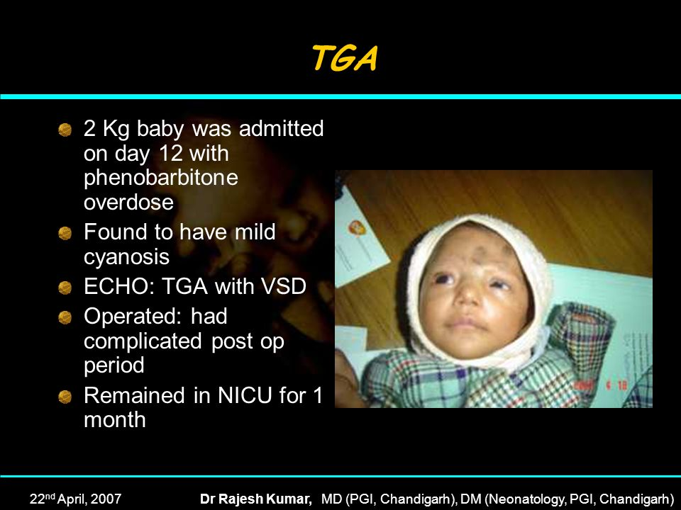 TGA 2 Kg baby was admitted on day 12 with phenobarbitone overdose