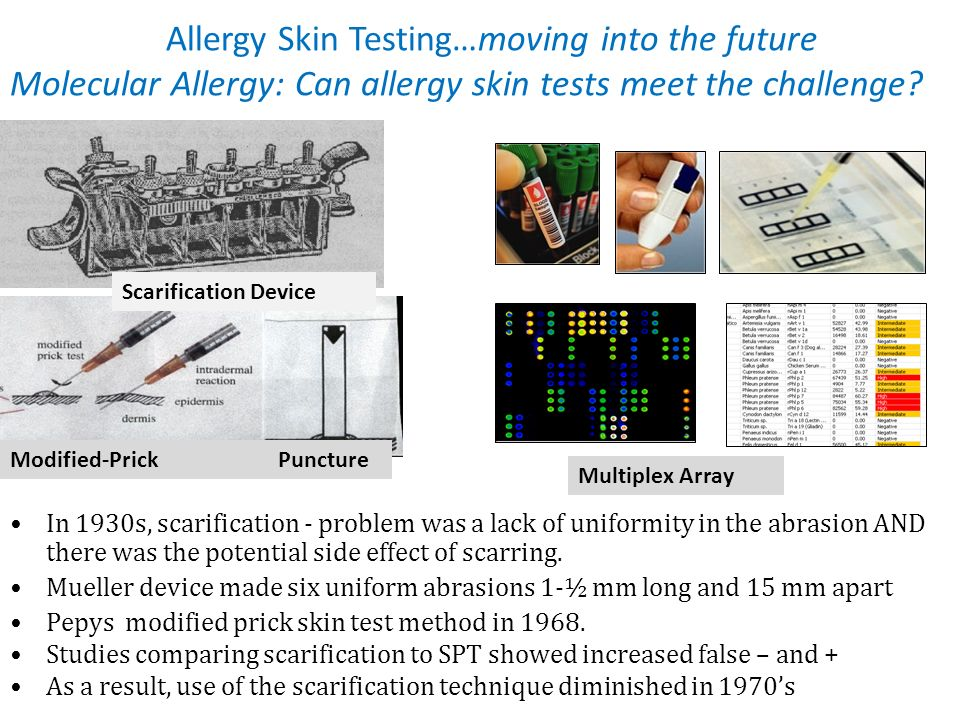 Allergy Skin Testing…moving into the future