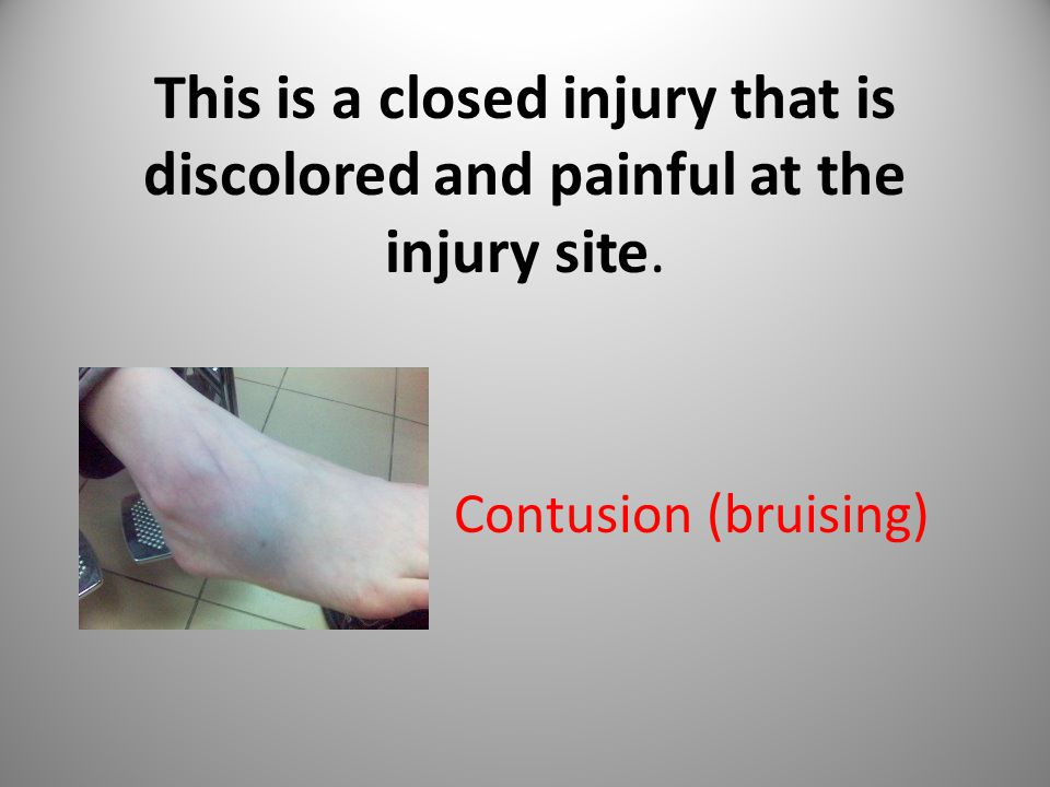 This is a closed injury that is discolored and painful at the injury site.