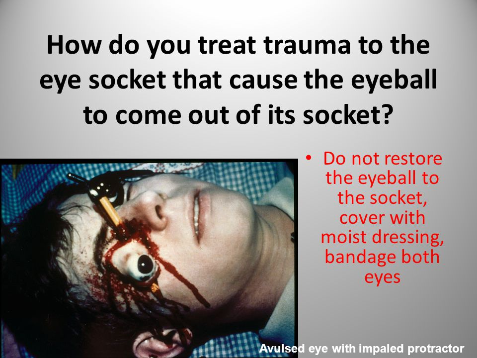How do you treat trauma to the eye socket that cause the eyeball to come out of its socket