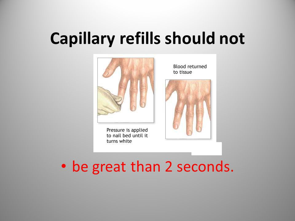 Capillary refills should not ________