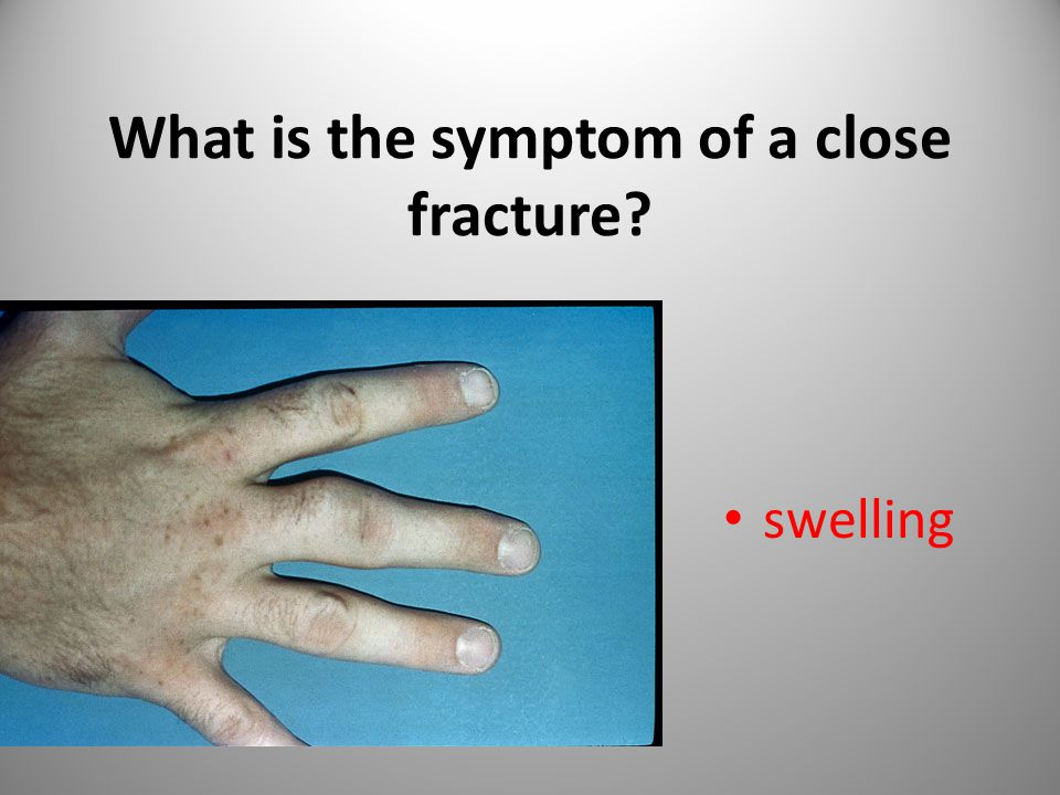 What is the symptom of a close fracture