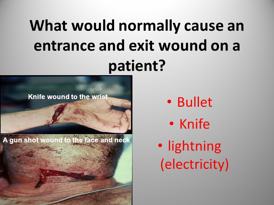 What would normally cause an entrance and exit wound on a patient