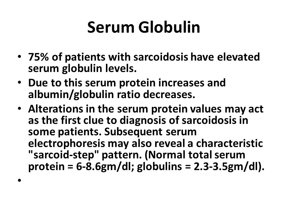 Serum Globulin 75% of patients with sarcoidosis have elevated serum globulin levels.