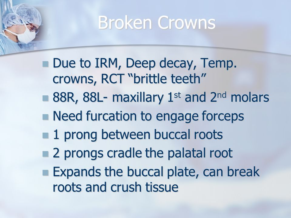 Broken Crowns Due to IRM, Deep decay, Temp. crowns, RCT brittle teeth 88R, 88L- maxillary 1st and 2nd molars.
