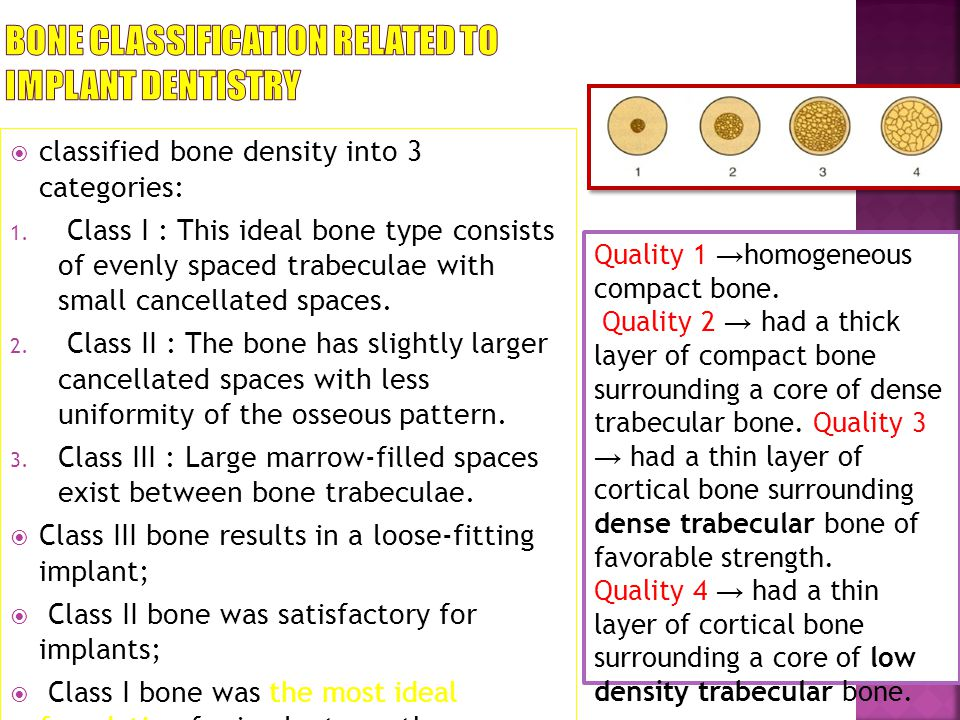 BONE CLASSIFICATION RELATED TO IMPLANT DENTISTRY