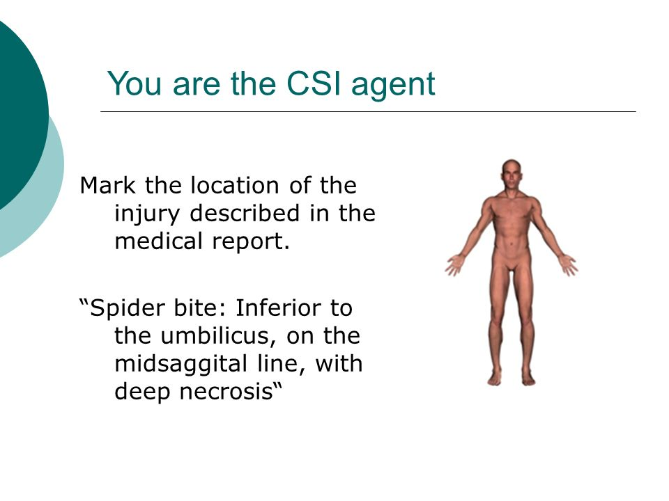 You are the CSI agent Mark the location of the injury described in the medical report.
