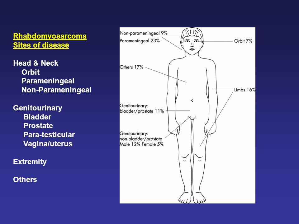 Rhabdomyosarcoma Sites of disease. Head & Neck. Orbit. Parameningeal. Non-Parameningeal. Genitourinary.