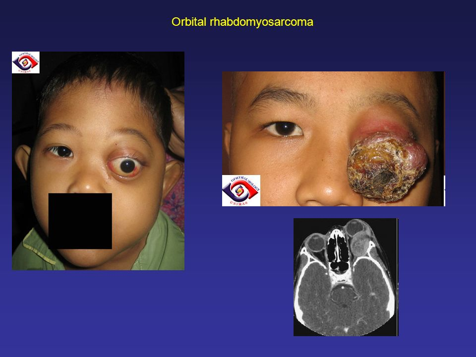 Orbital rhabdomyosarcoma