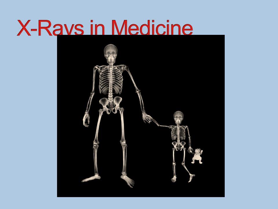 X-Rays in Medicine