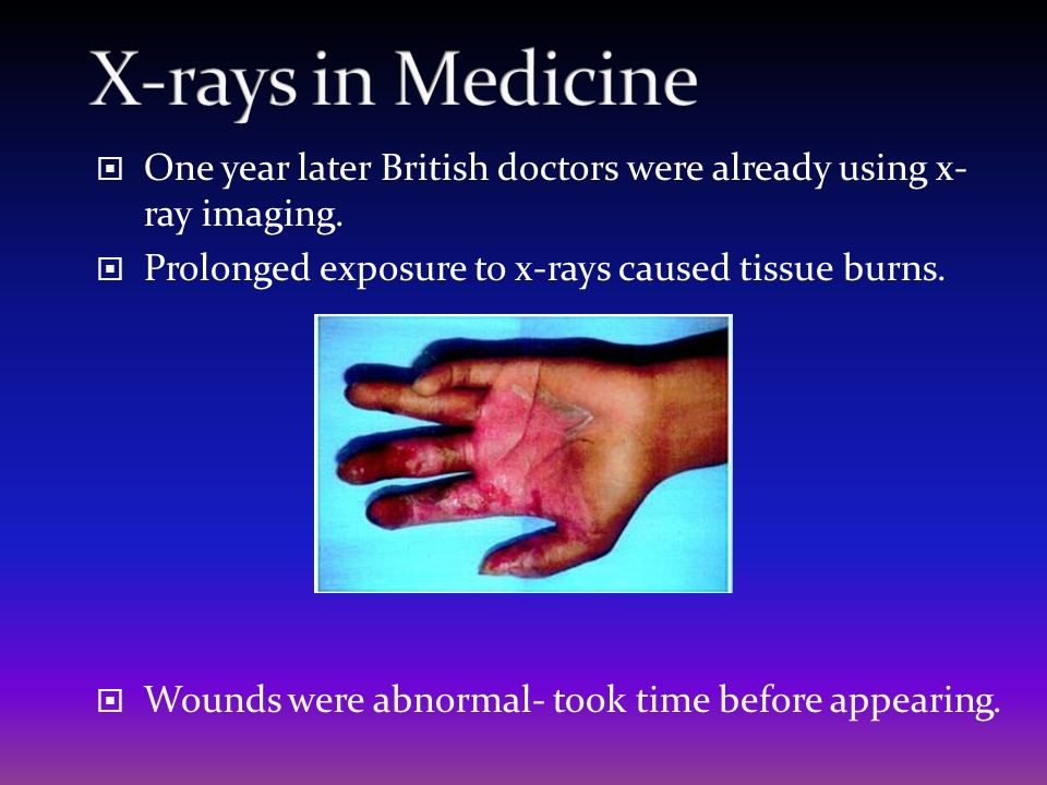 X-rays in Medicine One year later British doctors were already using x- ray imaging. Prolonged exposure to x-rays caused tissue burns.