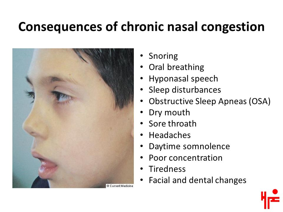 Consequences of chronic nasal congestion