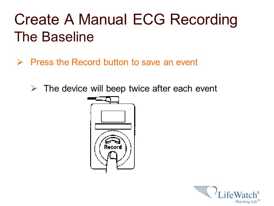 Create A Manual ECG Recording The Baseline