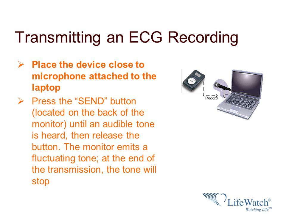 Transmitting an ECG Recording