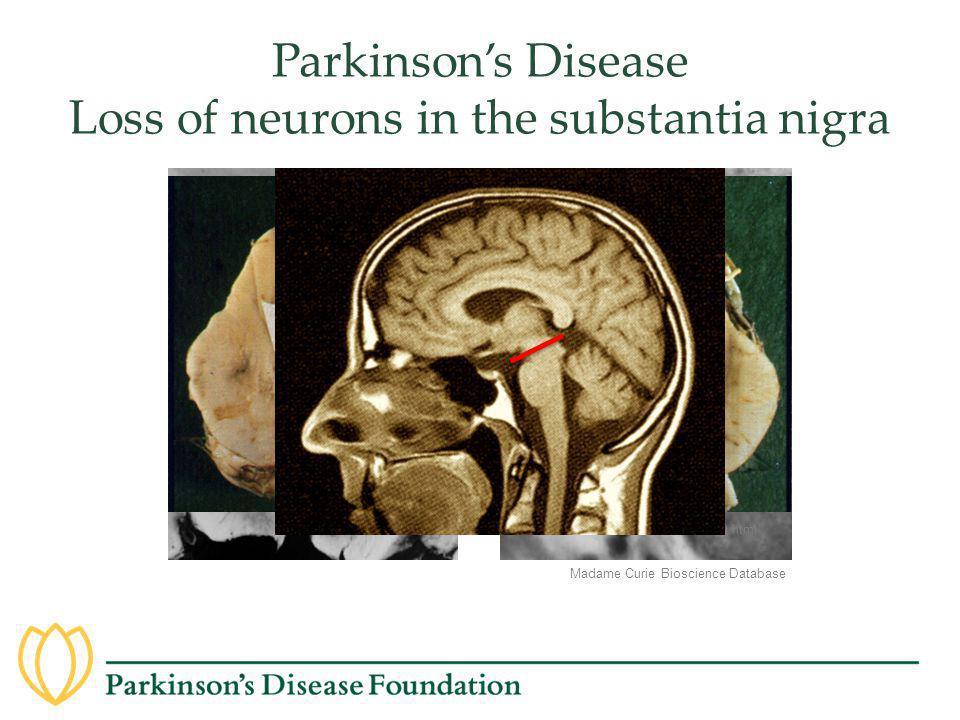 Parkinson's Disease Loss of neurons in the substantia nigra