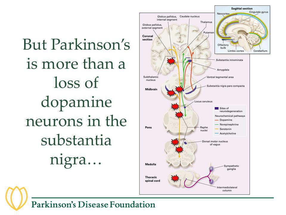 But Parkinson's is more than a loss of dopamine neurons in the substantia nigra…