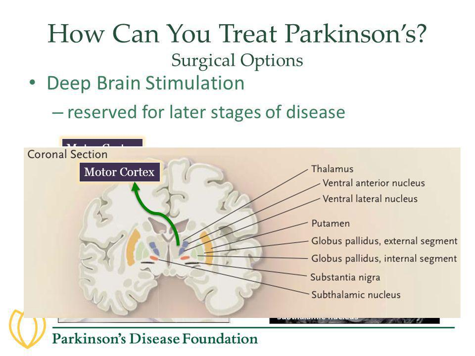 How Can You Treat Parkinson's Surgical Options
