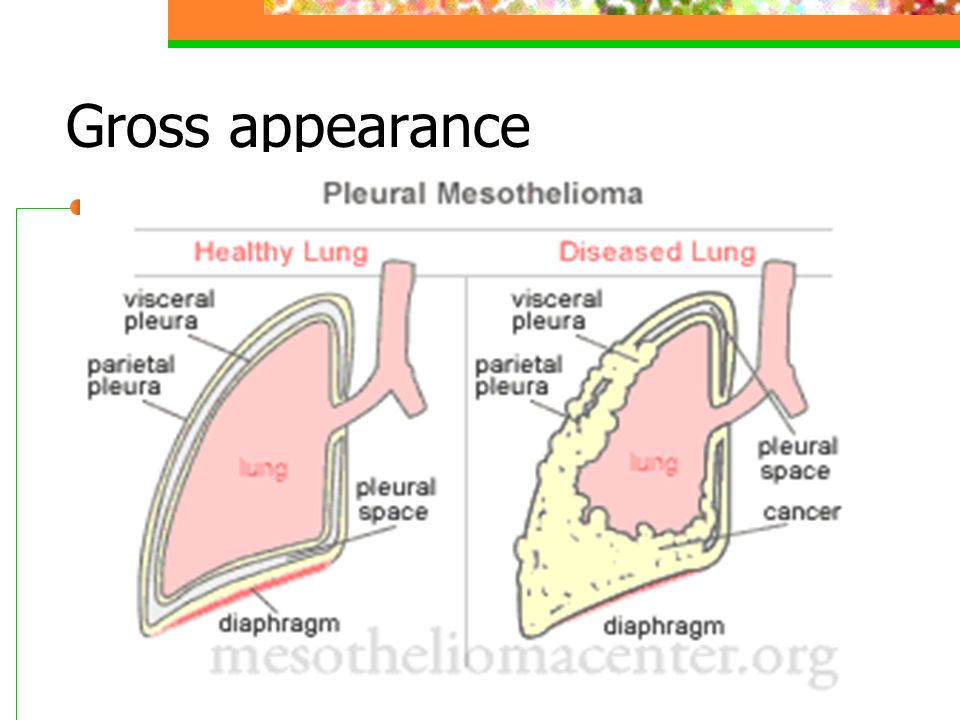 Gross appearance