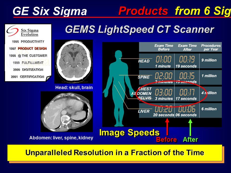GEMS LightSpeed CT Scanner