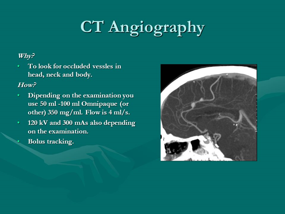 CT Angiography Why To look for occluded vessles in head, neck and body. How