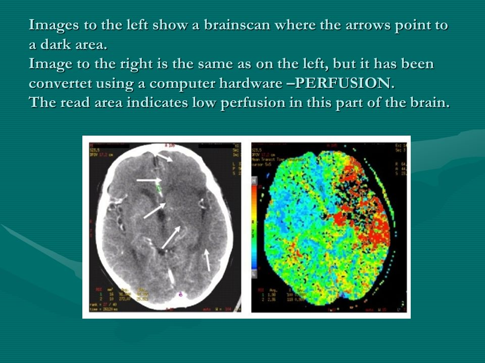 Images to the left show a brainscan where the arrows point to a dark area.