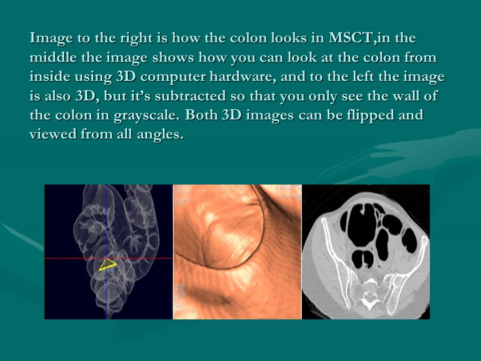 Image to the right is how the colon looks in MSCT,in the middle the image shows how you can look at the colon from inside using 3D computer hardware, and to the left the image is also 3D, but it's subtracted so that you only see the wall of the colon in grayscale.