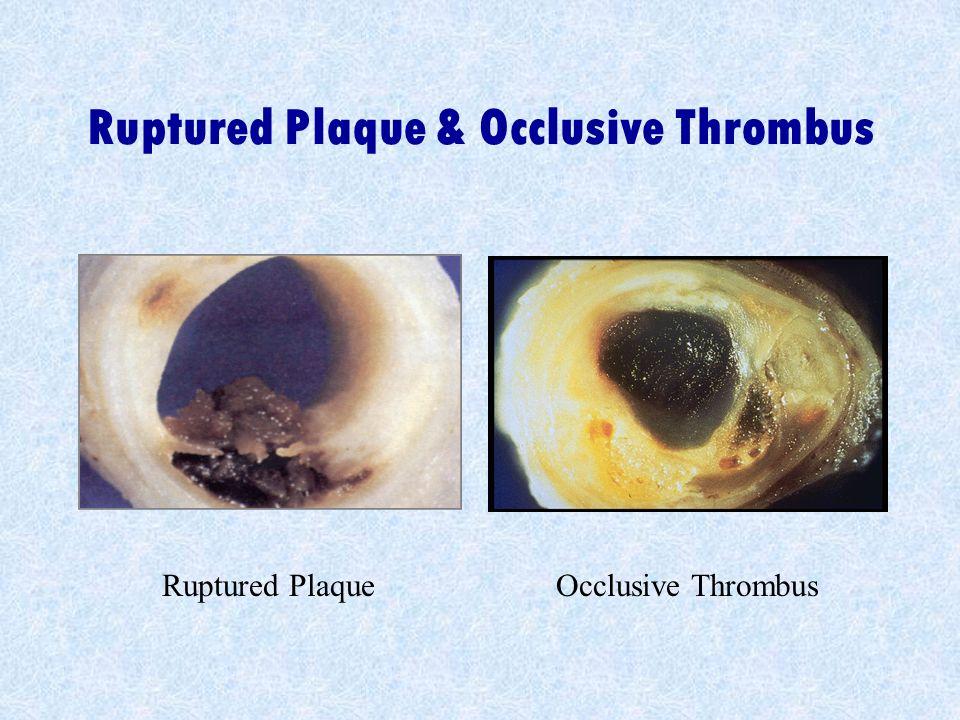 Ruptured Plaque & Occlusive Thrombus