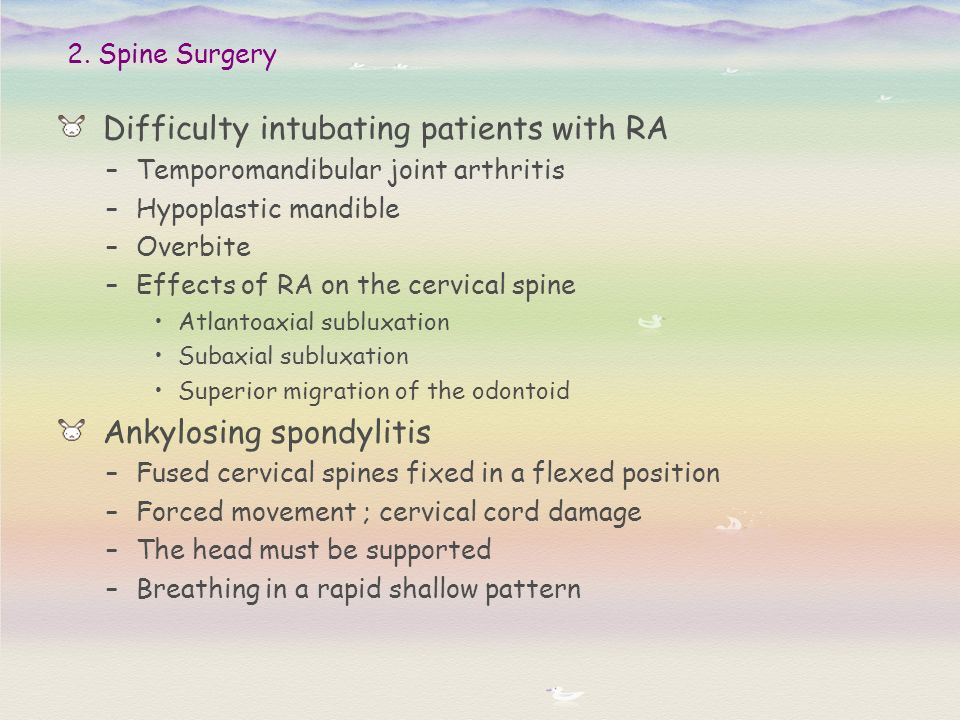 Difficulty intubating patients with RA