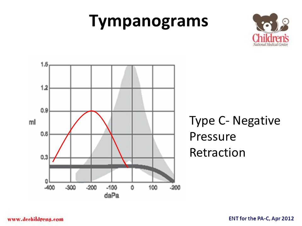 Tympanograms Type C- Negative Pressure Retraction