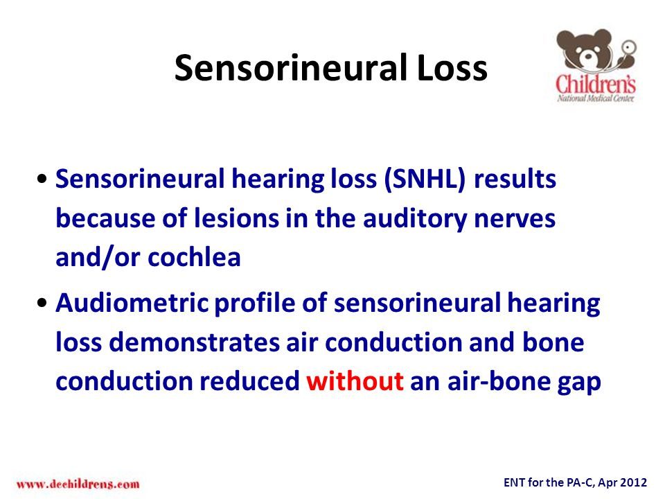 Sensorineural Loss Sensorineural hearing loss (SNHL) results because of lesions in the auditory nerves and/or cochlea.