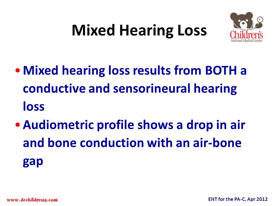 Mixed Hearing Loss Mixed hearing loss results from BOTH a conductive and sensorineural hearing loss.