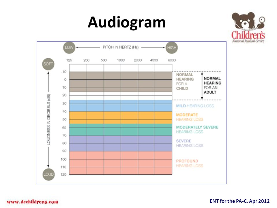Audiogram Listening to spoken language during early life is a critical prerequisite for the typical development of speech.