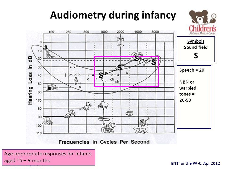 Audiometry during infancy