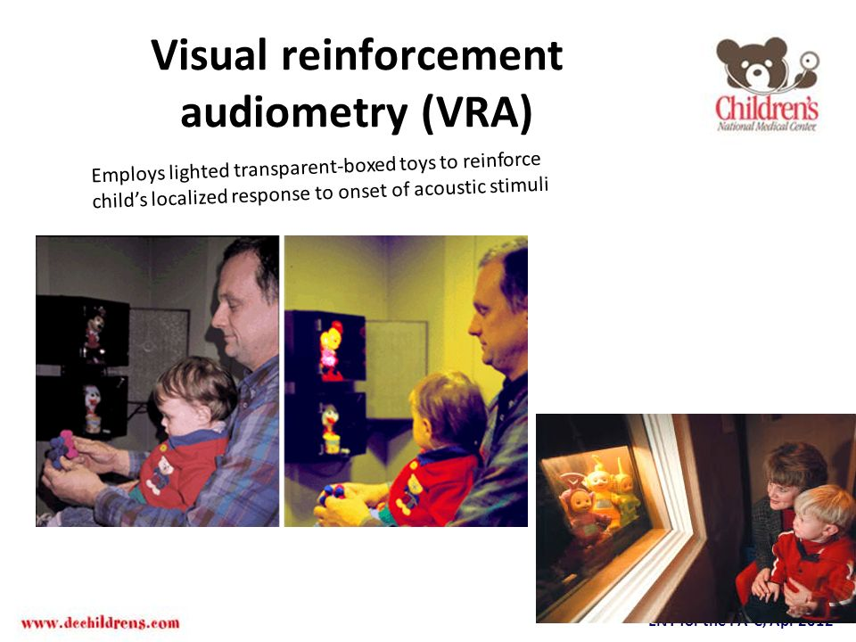 Visual reinforcement audiometry (VRA)