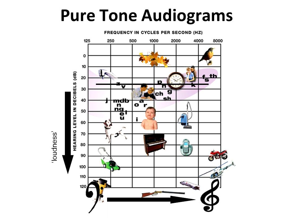 Pure Tone Audiograms 'loudness'