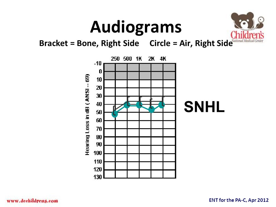Audiograms Bracket = Bone, Right Side Circle = Air, Right Side