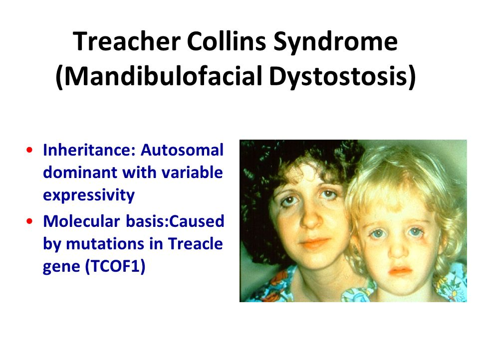 What is Treacher Collins syndrome?
