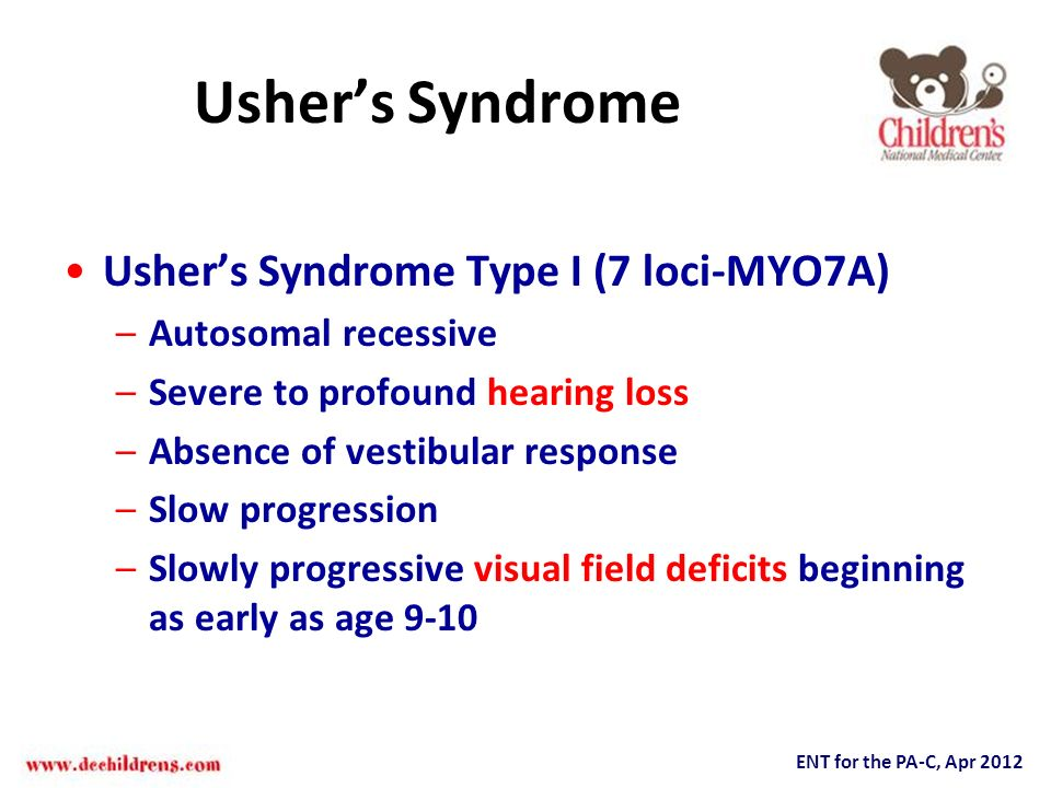 Usher's Syndrome Usher's Syndrome Type I (7 loci-MYO7A)