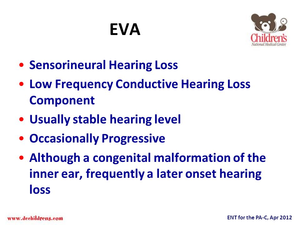 EVA Sensorineural Hearing Loss