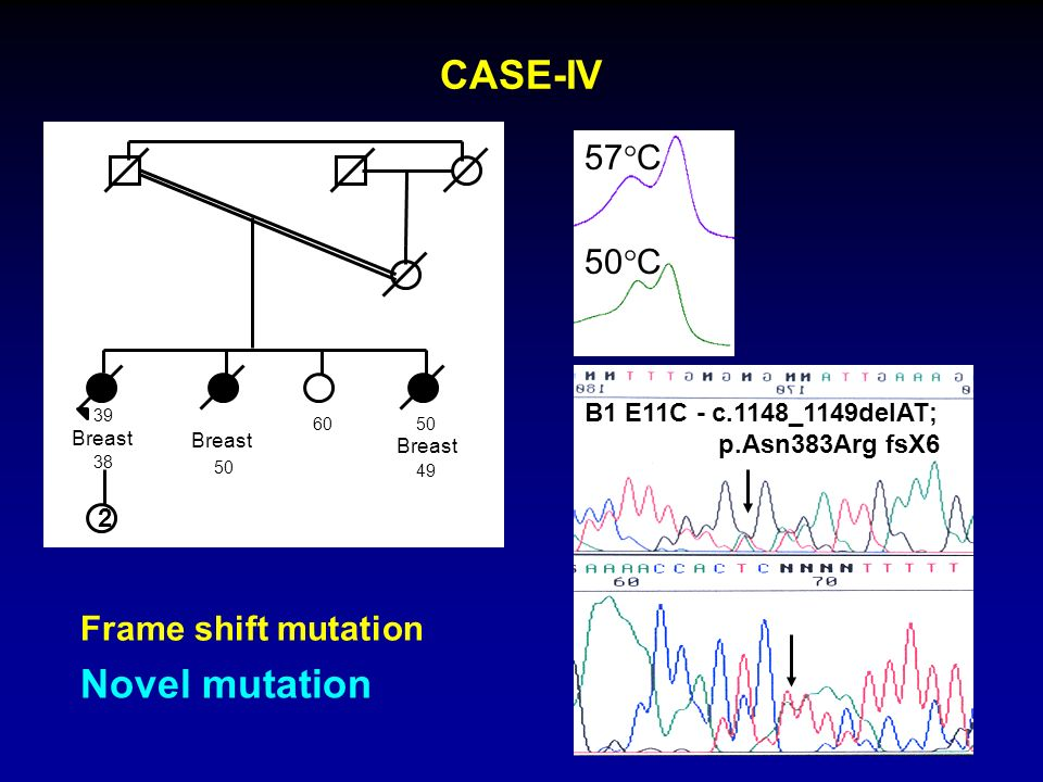 CASE-IV Novel mutation 57C 50C Frame shift mutation