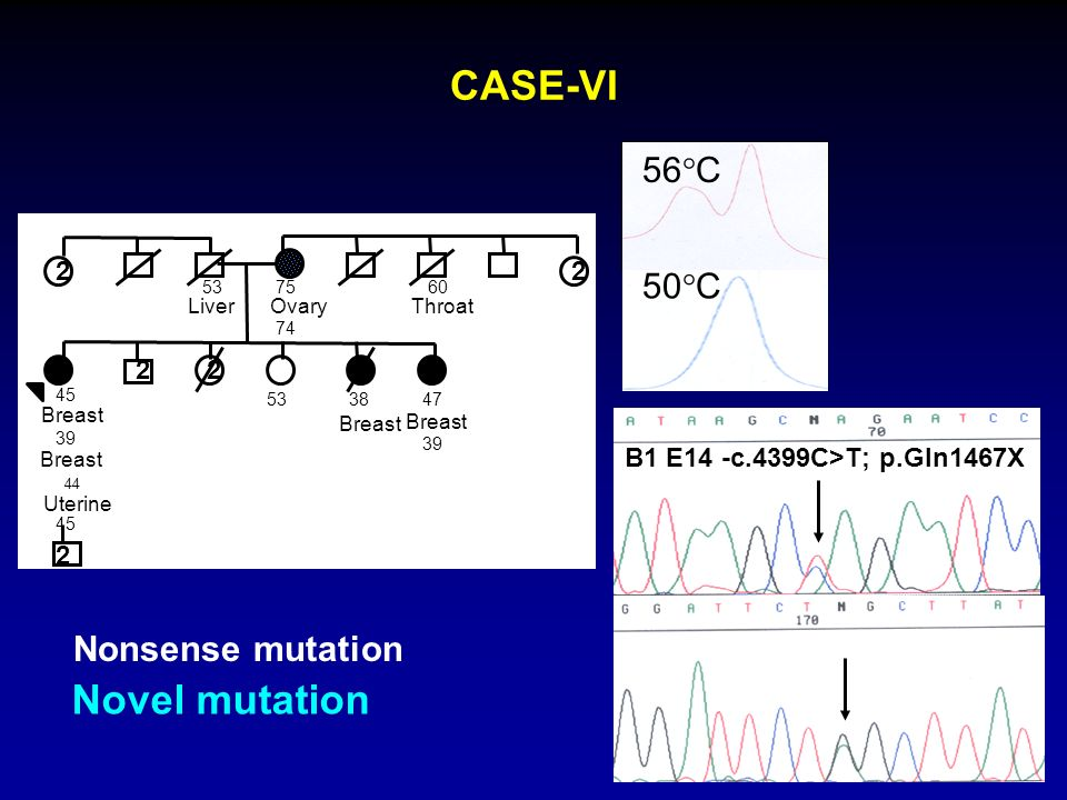 CASE-VI Novel mutation 56°C 50°C Nonsense mutation 2