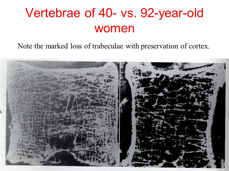 Vertebrae of 40- vs. 92-year-old women