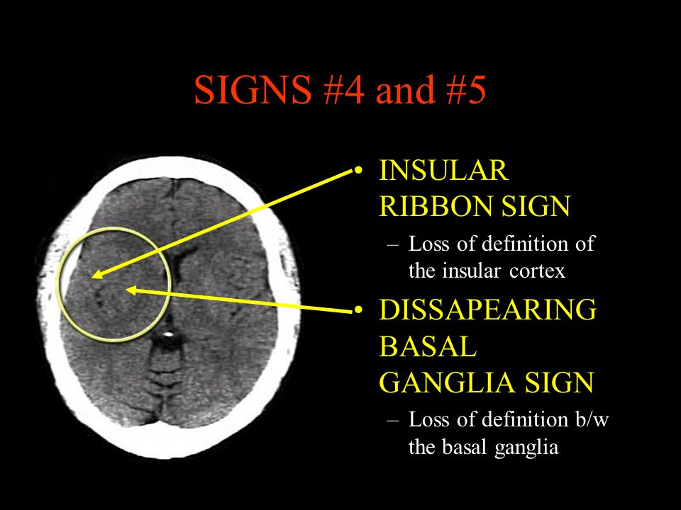 SIGNS #4 and #5 INSULAR RIBBON SIGN DISSAPEARING BASAL GANGLIA SIGN