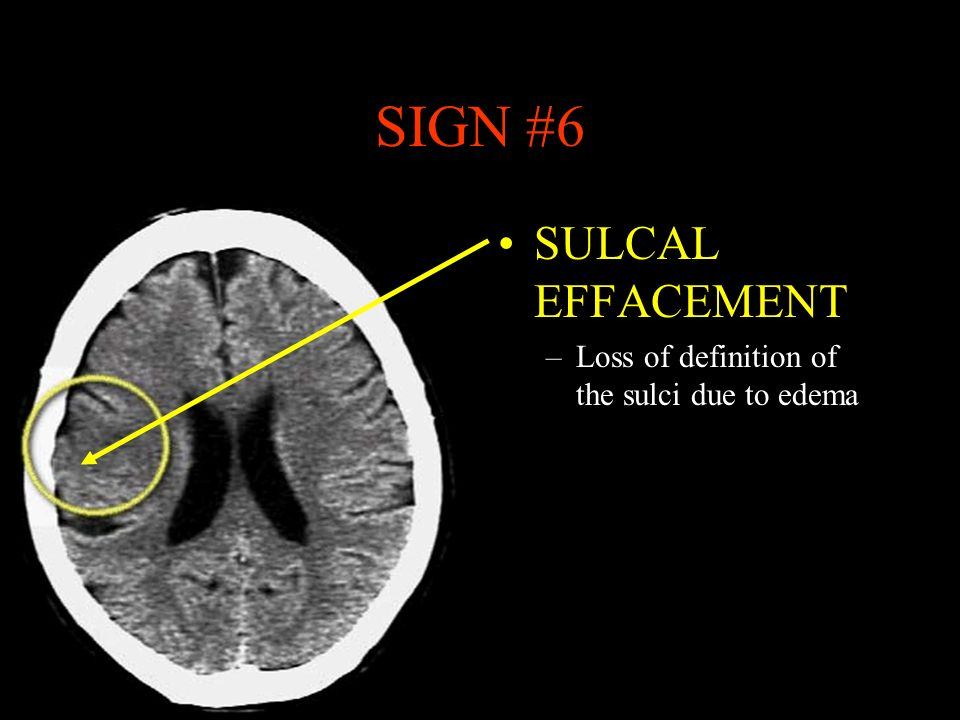 SIGN #6 SULCAL EFFACEMENT Loss of definition of the sulci due to edema