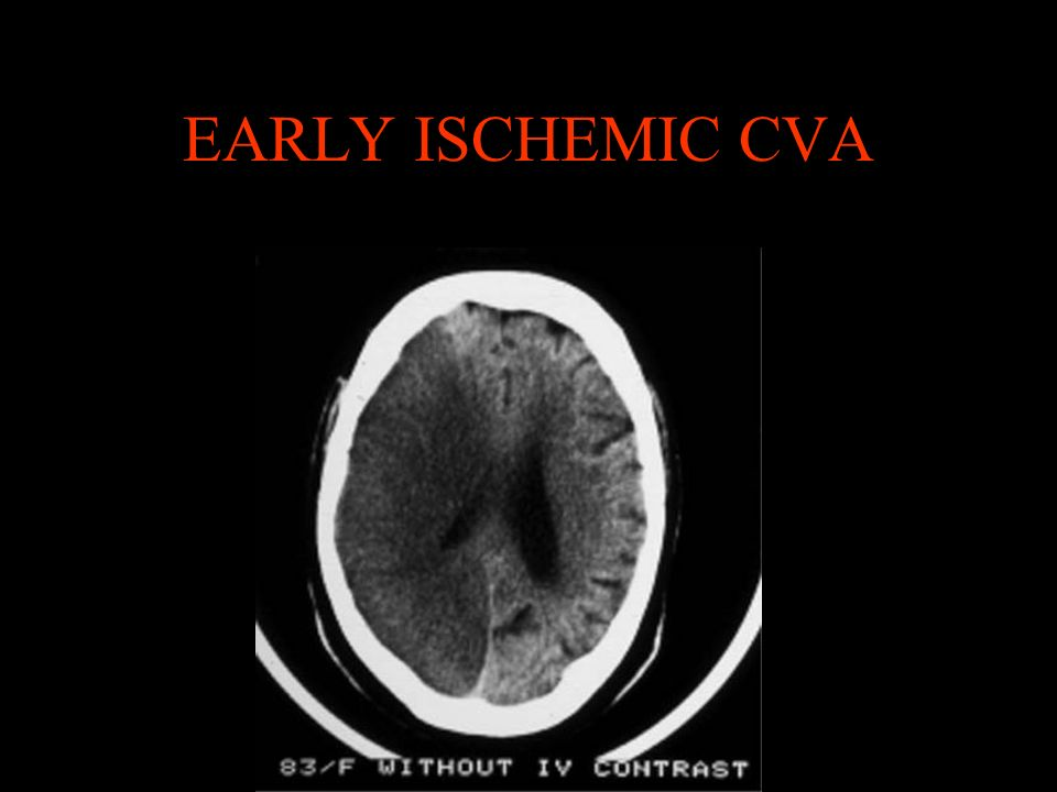 EARLY ISCHEMIC CVA